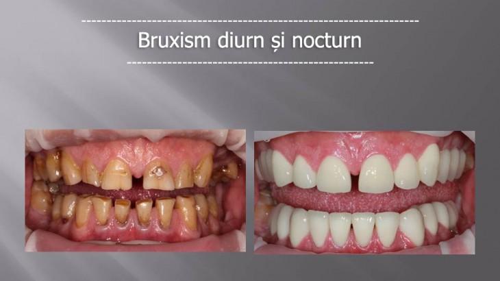 Foto1_Bruxism-nocturn-si-diurn