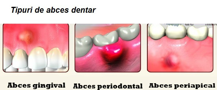 tipuri-de-abces-dentar