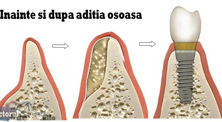 aditie-de-os-pentru-implant
